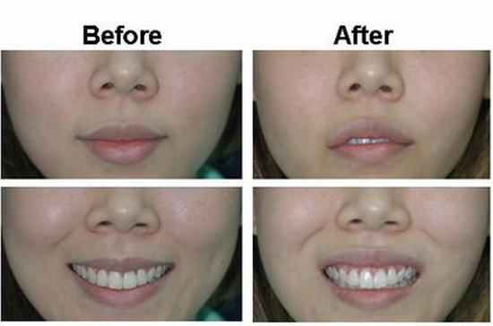 Buccal fat removal Thailand, Best Cosmetic Surgeon Bangkok