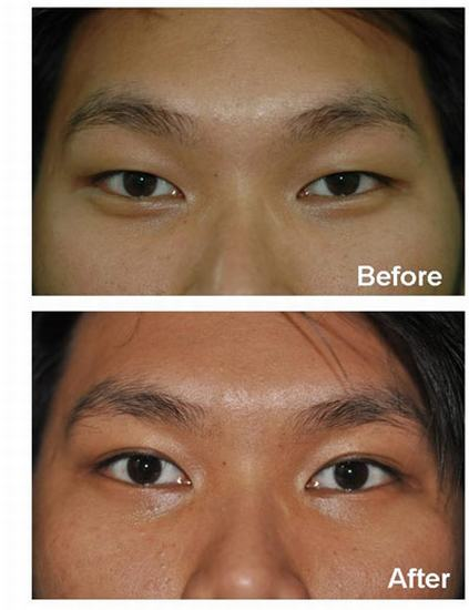 Upper eyelid surgery Thailand, Best Cosmetic Surgeon in Bang